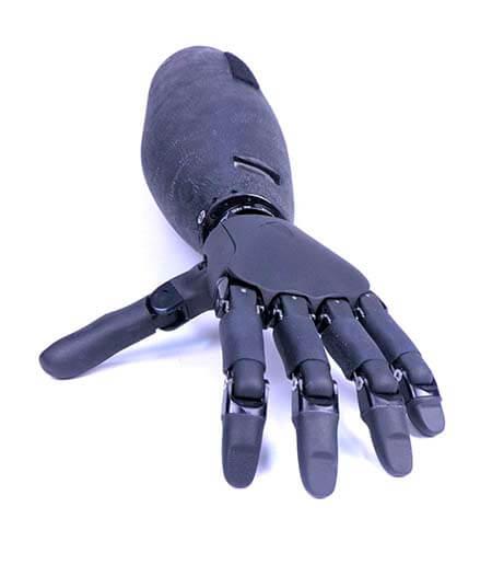 Prótesis ortopédicas robóticas